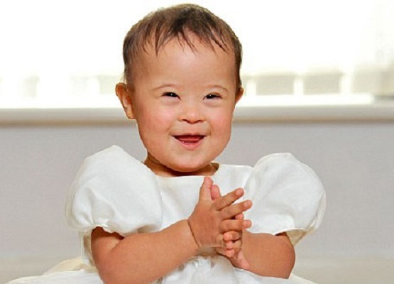 tlg-christian-news-american-nation-brags-how-it-has-aborted-100-of-the-babies-with-down-syndrome-downsyndromebaby7b